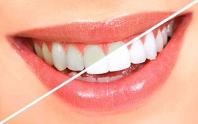 teeth-whtn